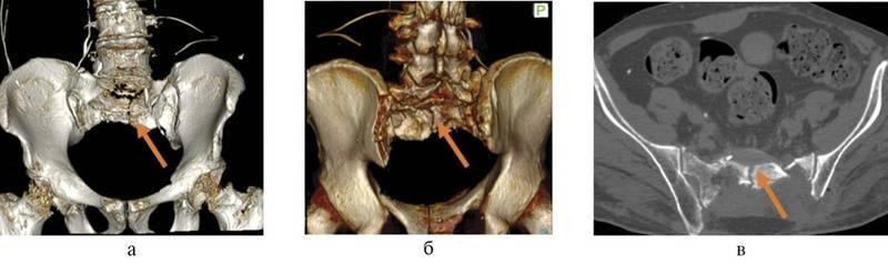 Сколько срастается перелом плечевой кости со смещением: как долго, сроки сращения перелома