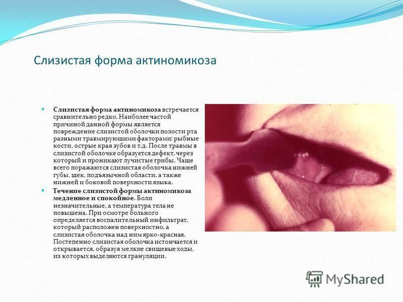 Симптомы инфекции ротовой полости и способы лечения