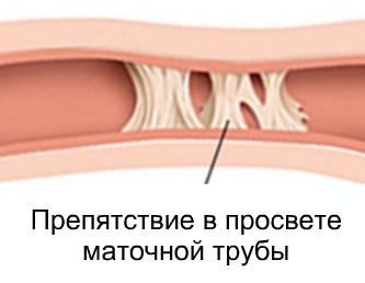 Непроходимость маточных труб: лечение, признаки и симптомы.