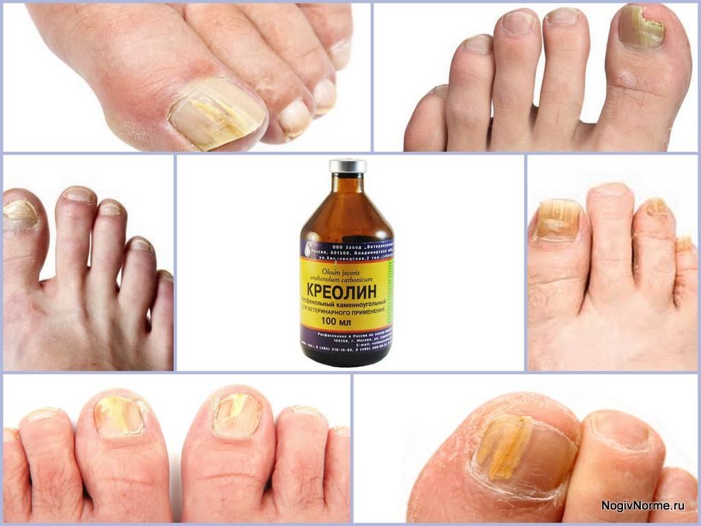Признаки и лечение начальной стадии грибка ногтей на ногах