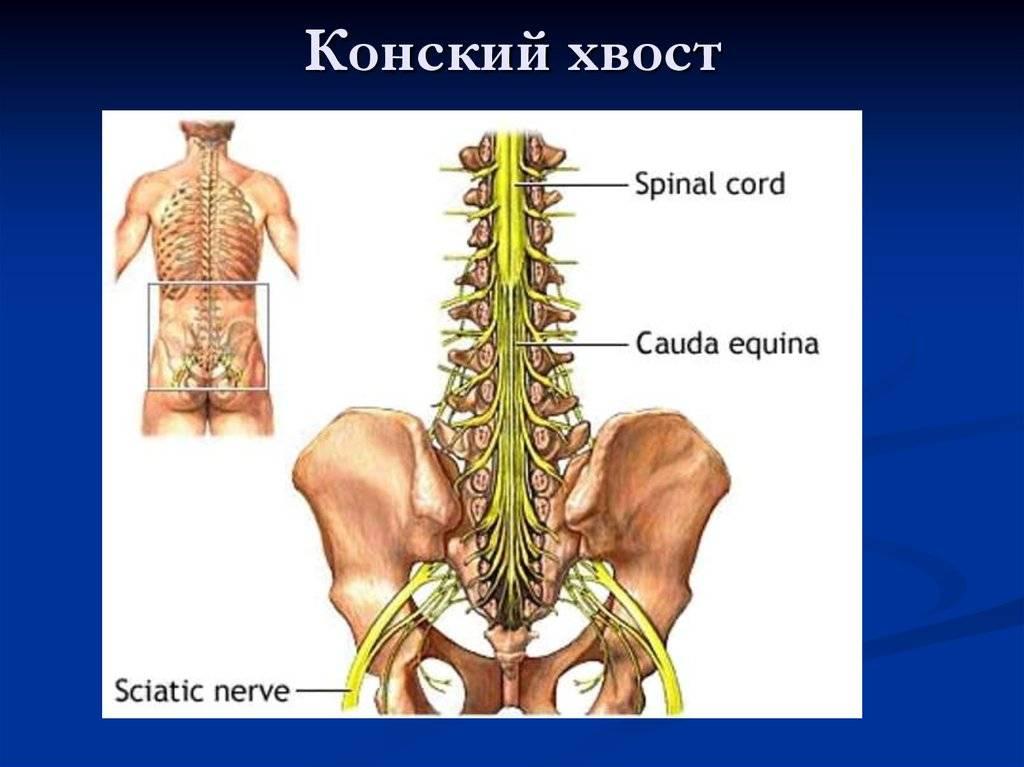 Конский хвост позвоночника: описание, симптоматика, лечение