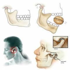 Сводит челюсти (спазмы мышц): что это за симптомы и что делать?