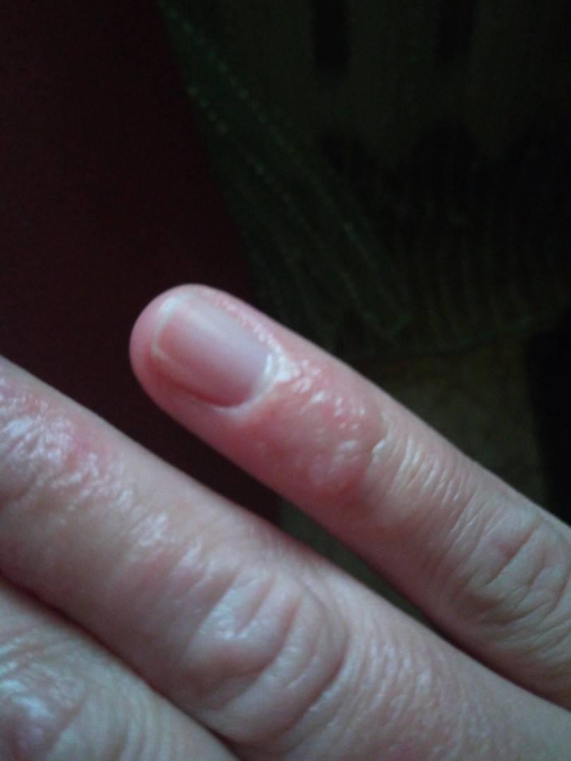 Мелкие прыщики на пальцах рук чешутся