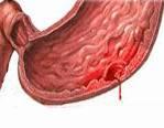 Симптомы и лечение кровотечения в желудке