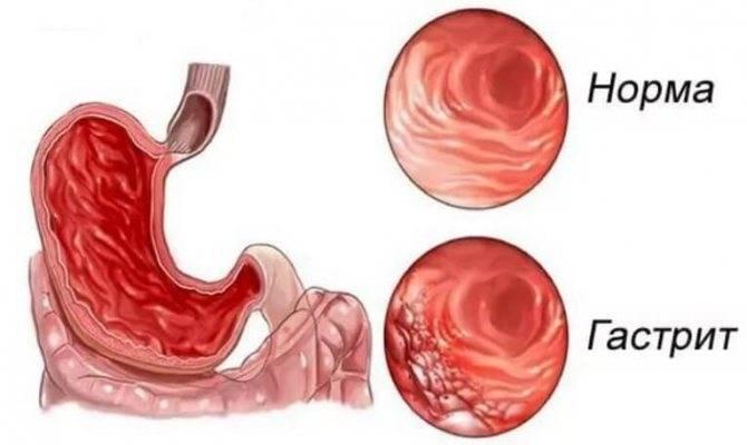 Гастрит - причины появления, симптомы, лечение и диета