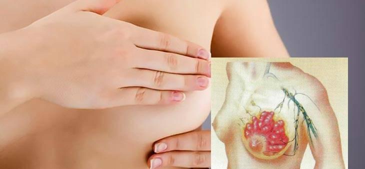 Мастопатия при климаксе: причины развития и способы лечения