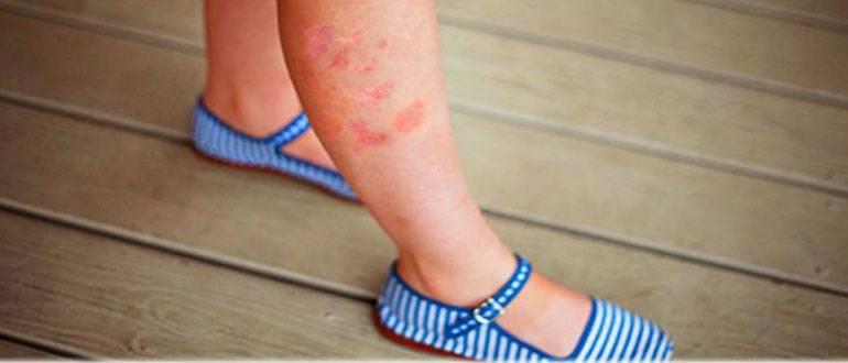 Какие мази от экземы на ногах наиболее эффективны?
