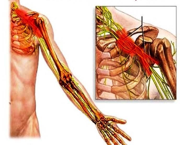 Лечение неврита плечевого сустава: симптомы, как снять боль и воспаление