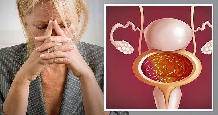 Как проходит лечение трихомониаза у женщин: препараты и схема