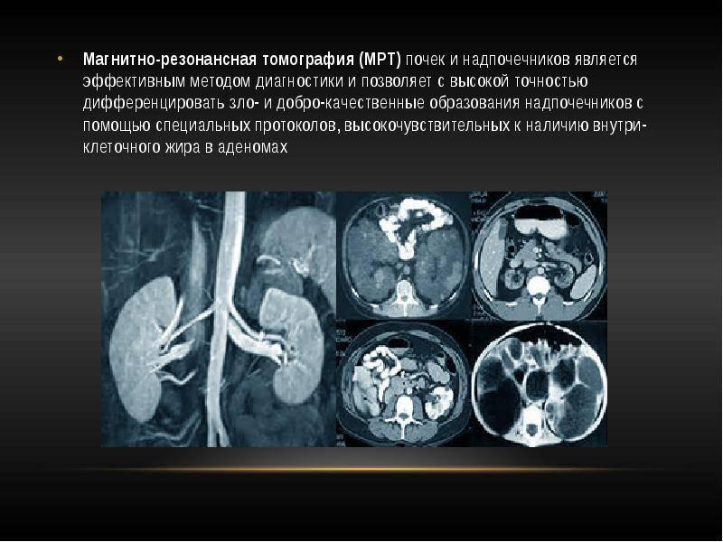 Компьютерная томография (кт) почек – виды (шаговая, скт, мскт) с контрастом и без контраста, показания и противопоказания. что такое однофотонная эмиссионная томография почек?