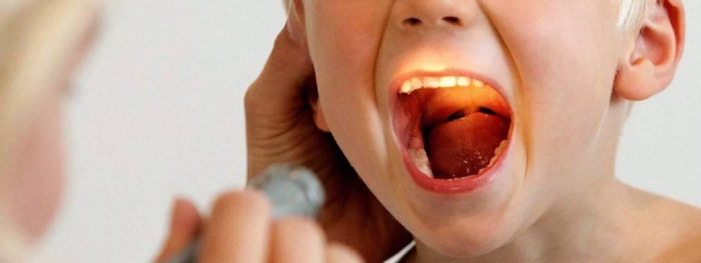 Герпесный стоматит у детей и взрослых: лечение