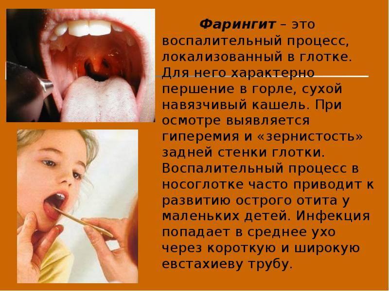 Першит в горле: что делать и как избавиться от сухого кашля