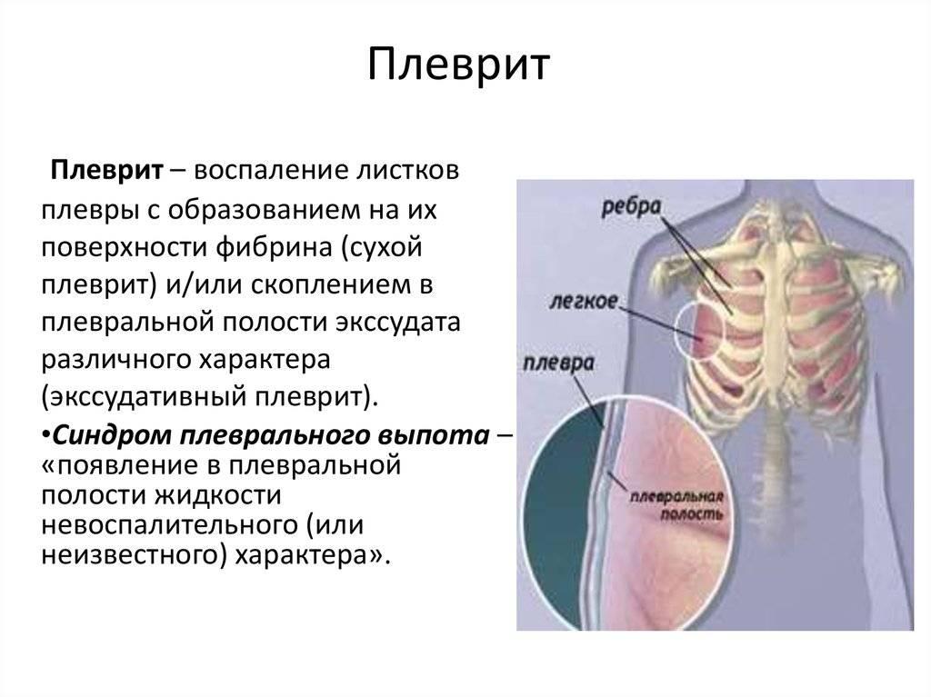 Боль в грудине посередине: при вдохе, при движении, причины