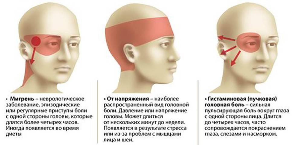 Давит виски, голову, глаза все причины давящей боли и лечение