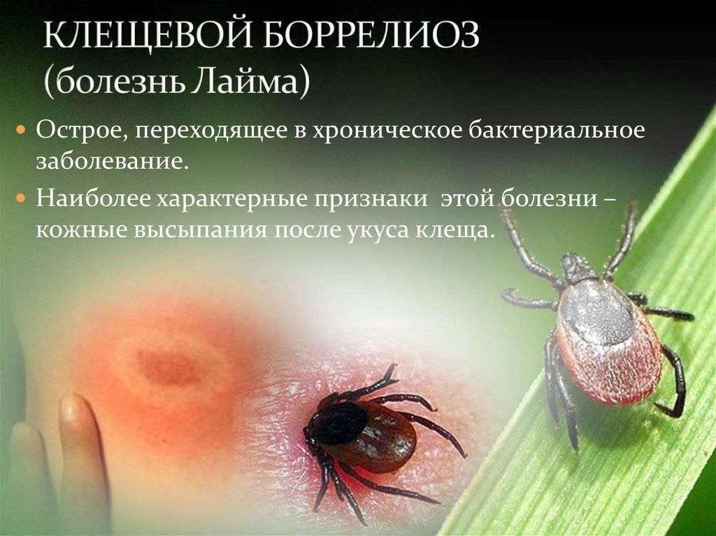 Клещевой боррелиоз: симптомы, фото, лечение, последствия для человека