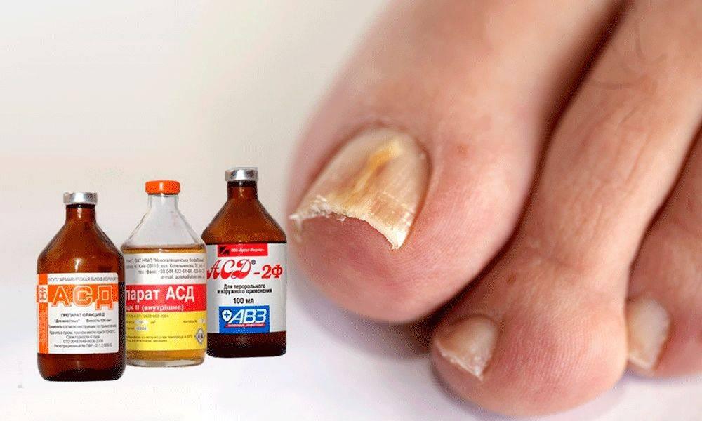 Начальная стадия грибка ногтей: фото