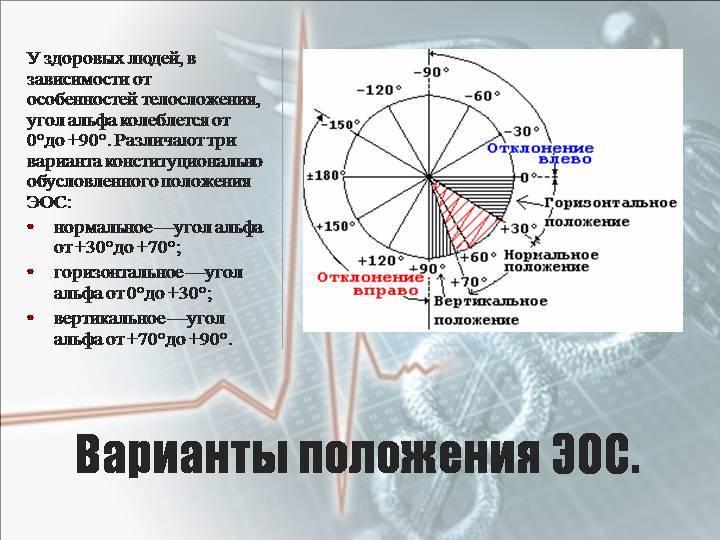 Отклонение эос (электрической оси сердца) вправо: что это значит?
