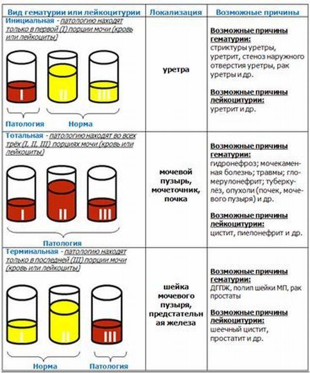 простатиты симптомы и цвет мочи