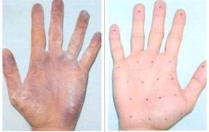 Ботулинотерапия при гипергидрозе подмышек, головы и ладоней: отзывы
