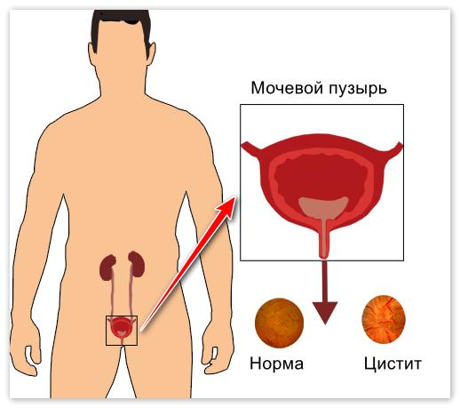 Цистит у женщин вызванный простатитом у мужчин таблетки о т простатита