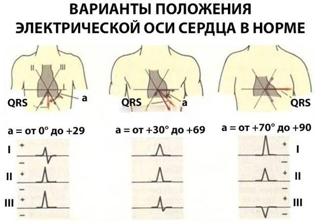 Электрическая ось сердца — сердце