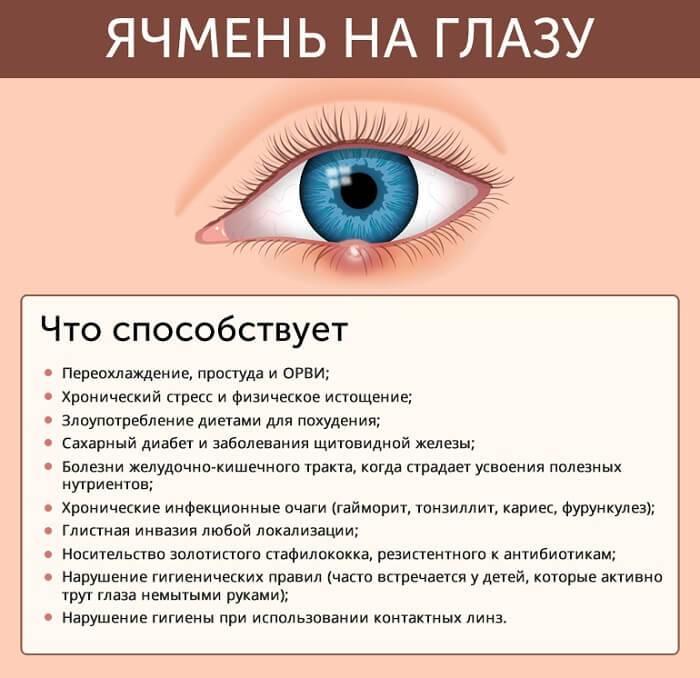 Болят глаза после гриппа - причины осложнения и лечение 2020