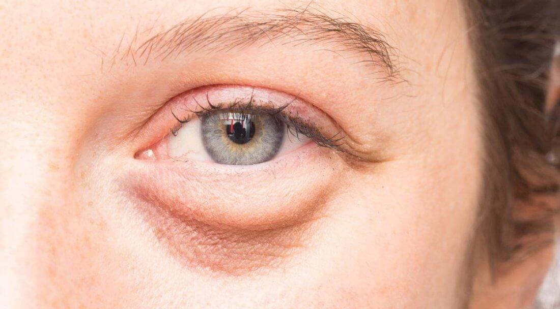 Как убрать отеки под глазами – топ действенных методов (2020)
