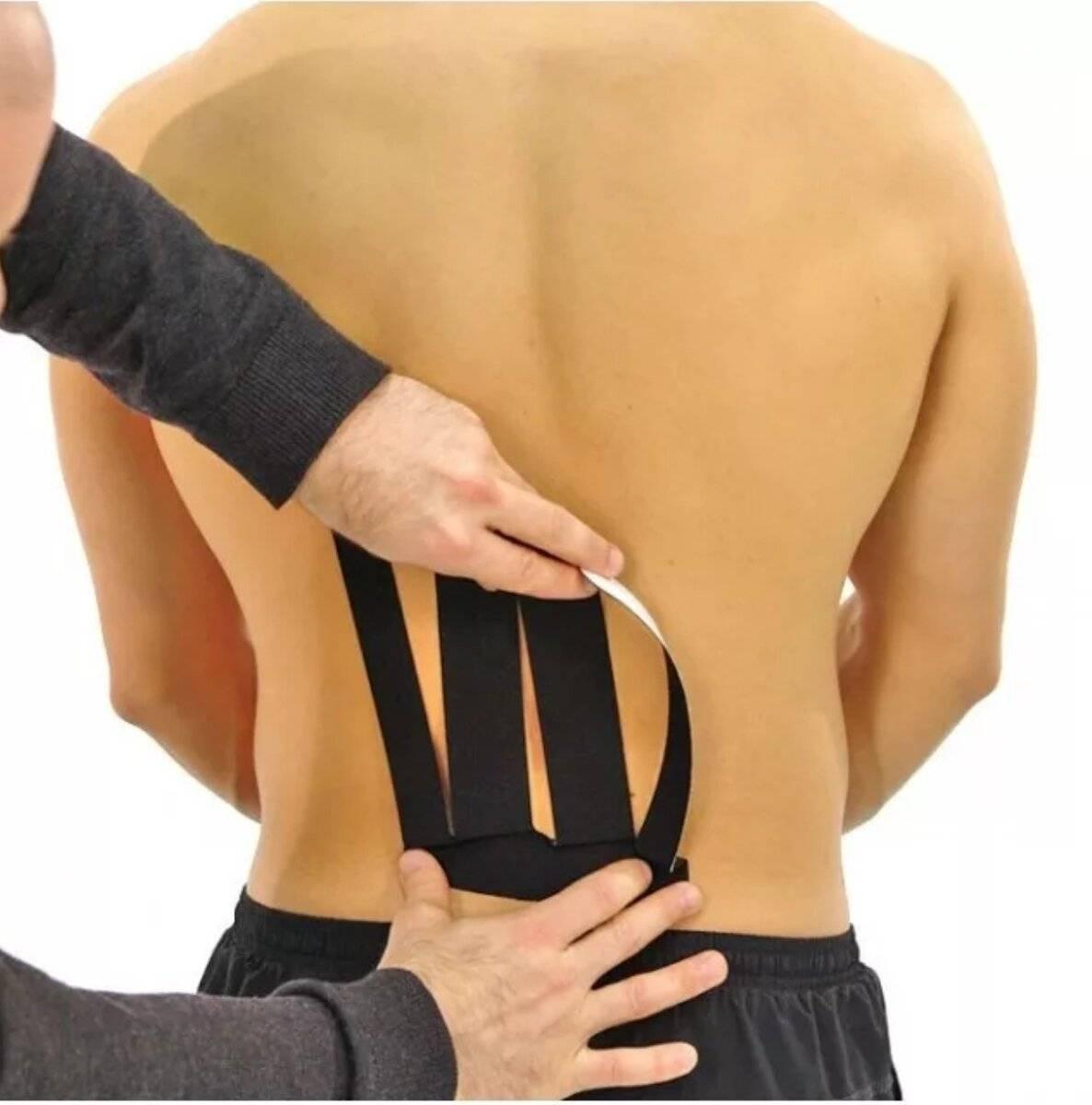 Кинезиотейпирование спины: накладывание тейпа на поясничный отдел и позвоночник