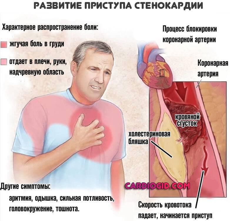 Симптомы инфаркта у женщин: первые признаки, проявления острой стадии и первая помощь пациентке