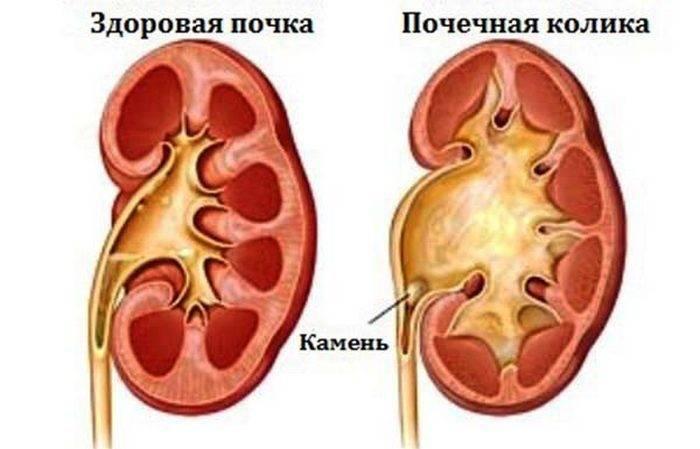 Симптомы урологических заболеваний у женщин и мужчин