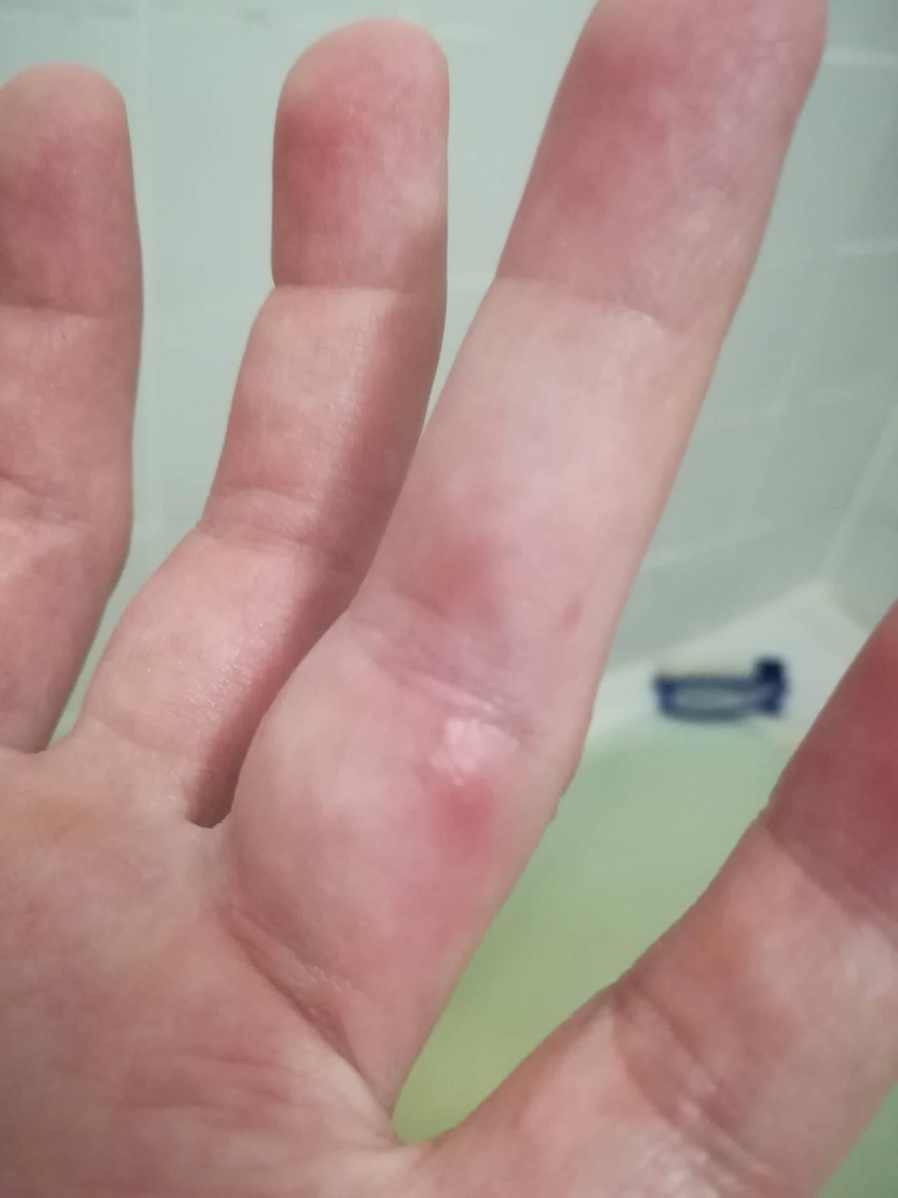 Мелкие прыщики на пальцах рук чешутся - все о здоровье