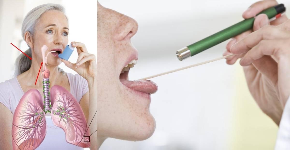 Если першит в горле и сухой кашель, самое эффективное лечение
