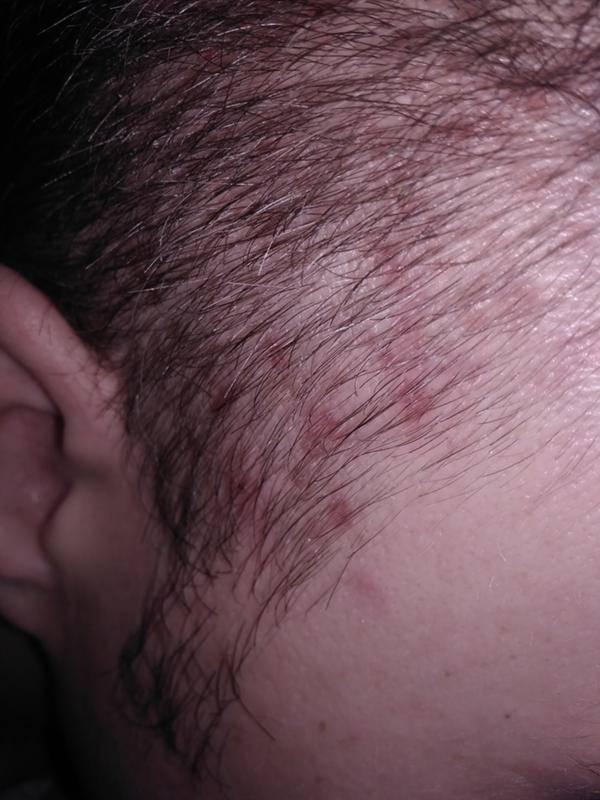 Прыщи на голове - причины и лечение. зуд, покраснение - про прыщи