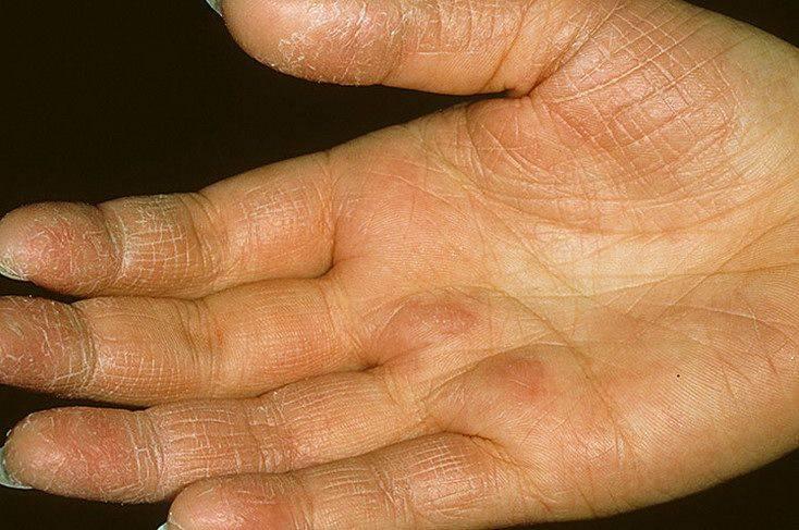 Способы лечения экземы на руках у взрослых и детей, народные методы лечение разных видов экземы