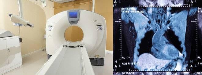 Особенности проведения коронарографии мскт сердца