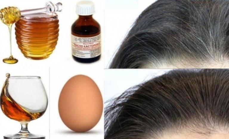 Седые волосы. как избавиться, убрать седину навсегда без окрашивания, краски, народные средства, оттеночные шампуни. причины ранней седины у мужчин и женщин