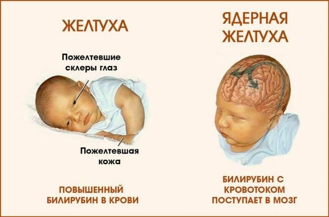 Энцефалопатия у детей и подростков
