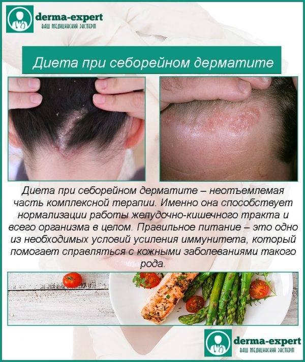 Лечение аллергического дерматита у взрослых: фото, мази, народные средства