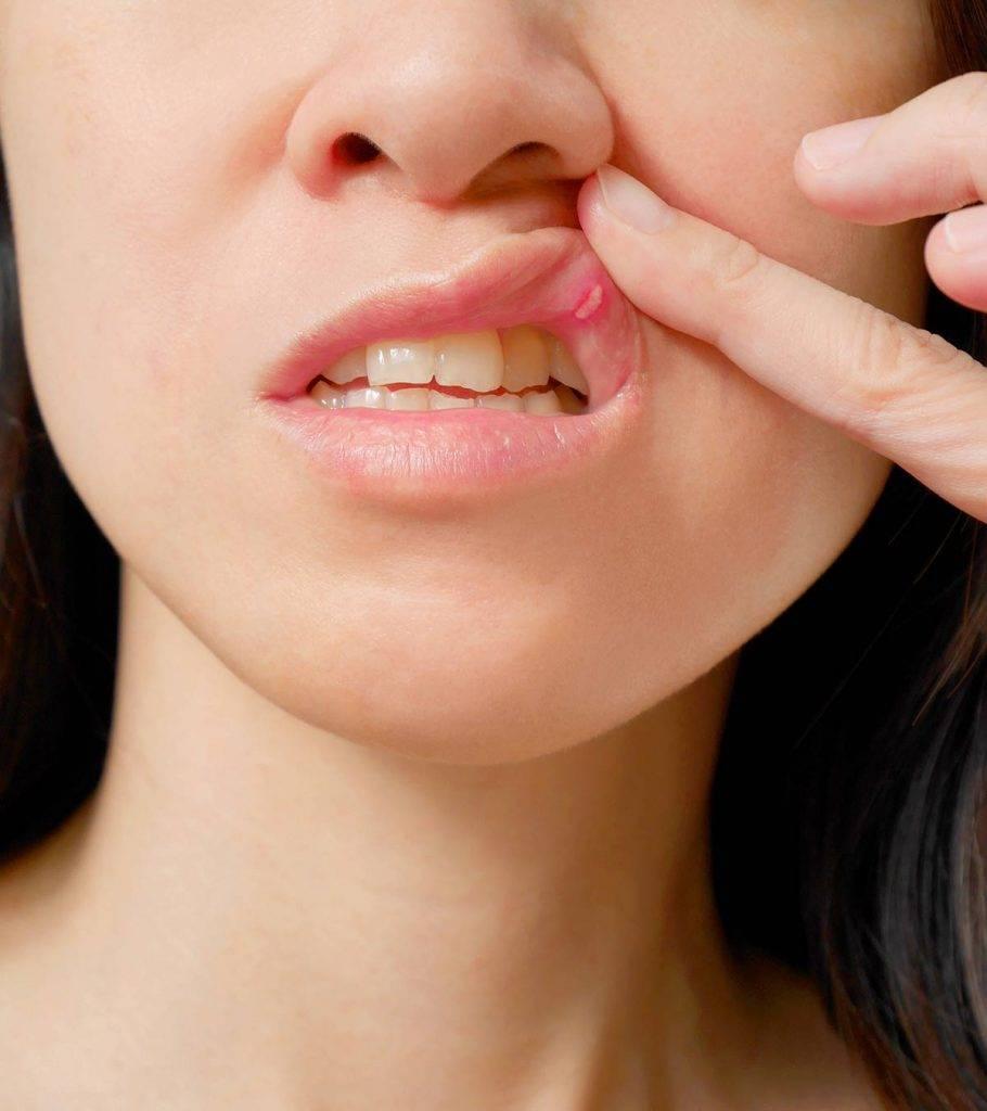 Острый герпетический (афтозный) стоматит: лечение и причины