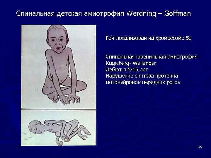 Спинальная мышечная атрофия у детей и взрослых: причины возникновения, продолжительность жизни, симптомы, коды по мкб-10 и лечение