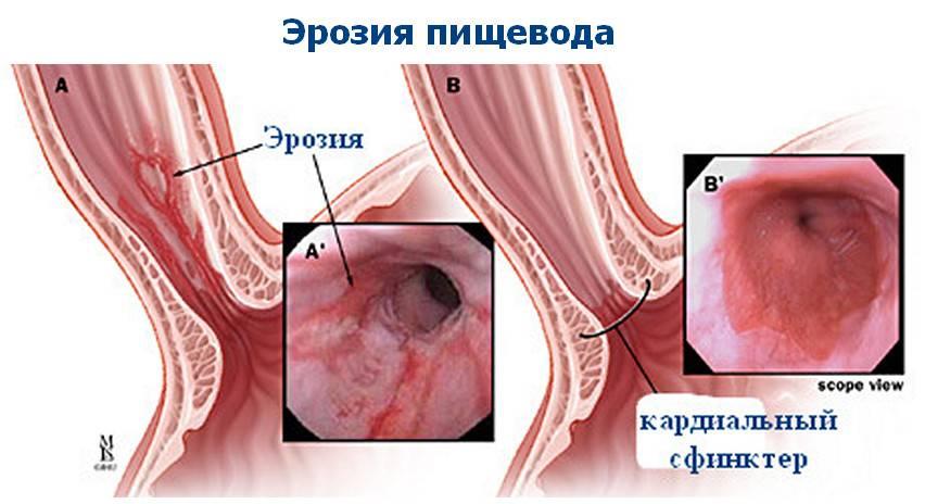 Гастрит эзофагит рефлюкс: симптомы, лечение и диета