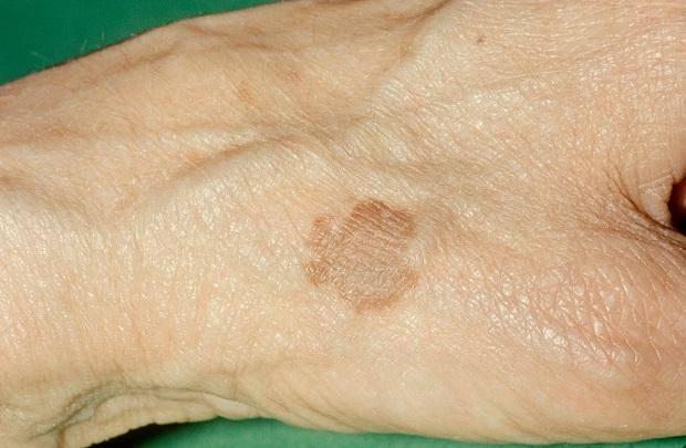 Пятна на коже шелушатся, но не чешутся: причины и лечение