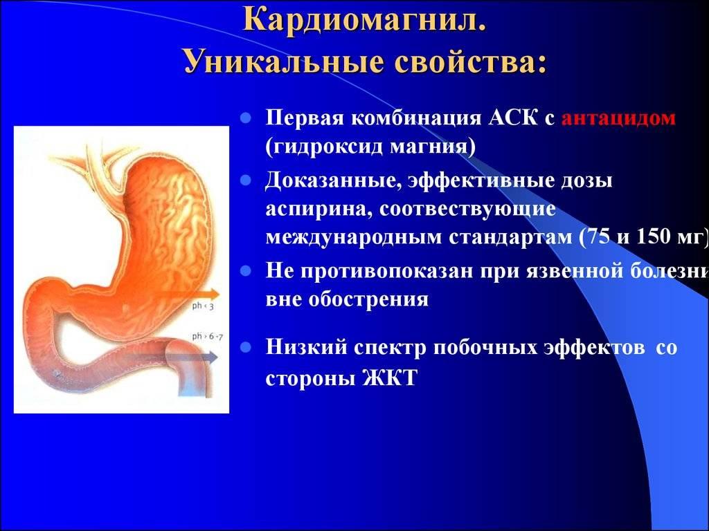 """Гастрит кардиомагнил   все вопросы и ответы о """"гастрит кардиомагнил""""   03.ru - скорая помощь онлайн"""