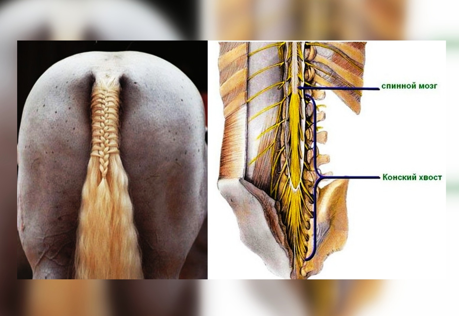 Синдром конского хвоста: симптомы и лечение