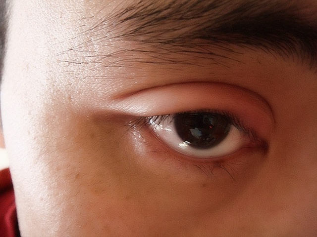 Причины появления и лечение прыща на веке глаза