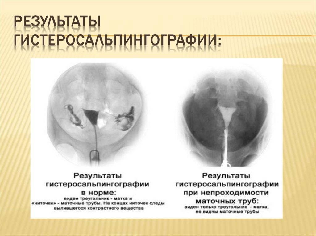 Как проверяют проходимость маточных труб - обследование (анализ)