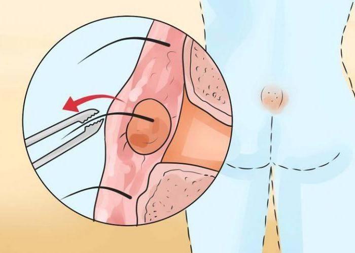 Операция по удалению кисты копчика: заживление и реабилитация