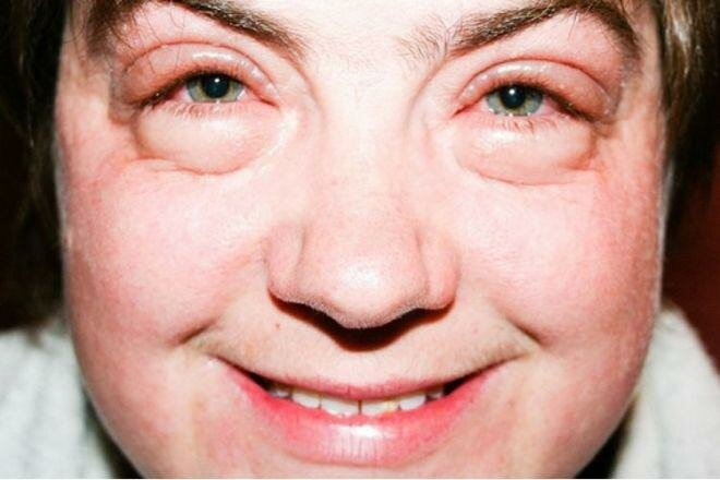 Отеки над глазами: причины, как лечить припухлость верхнего века, что делать если глаз опух внезапно