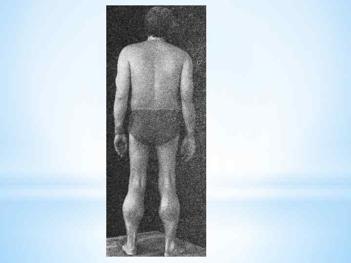 Миопатия дюшенна: лечение и симптомы синдрома миодистрофии, причины болезни, продолжительность жизни
