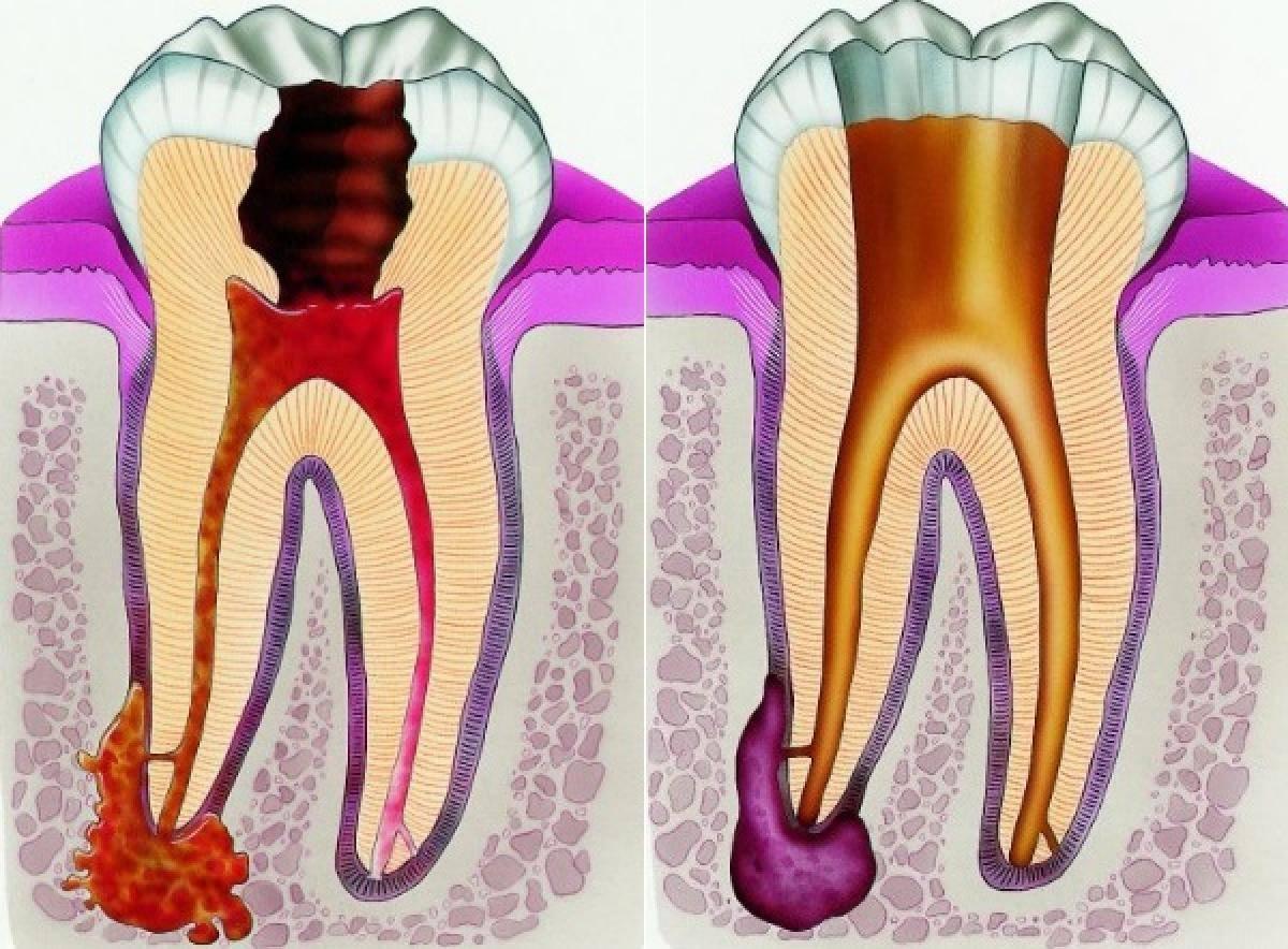 Пульпит: лечение в домашних условиях, как лечить зуб народными средствами, что это такое, чем вылечить, снять боль, успокоить
